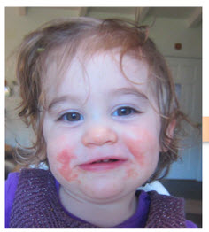 Safe, Natural Treatments and Prevention for Your Child's Eczema